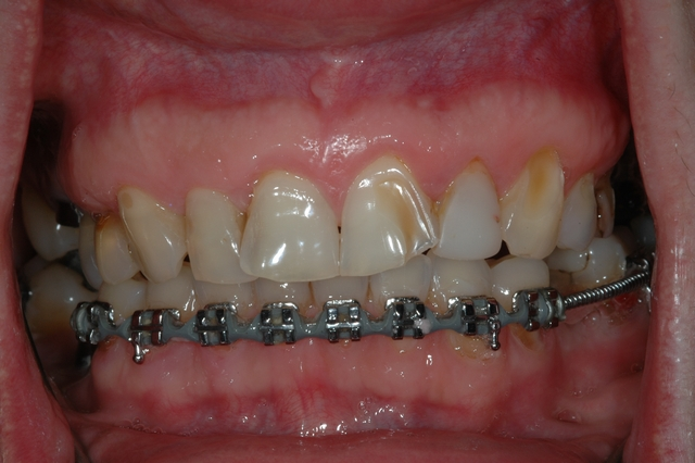 BEFORE - pre-treatment of eroded, crowded teeth with braces.