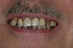 BEFORE - Failing Upper/Lower Teeth - Prosthodontics on Chamberlain