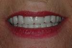 AFTER - New Denture Smile