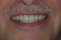 AFTER -Full Denture following removal of all teeth -Prosthodontics on Chamberlain, Ottawa